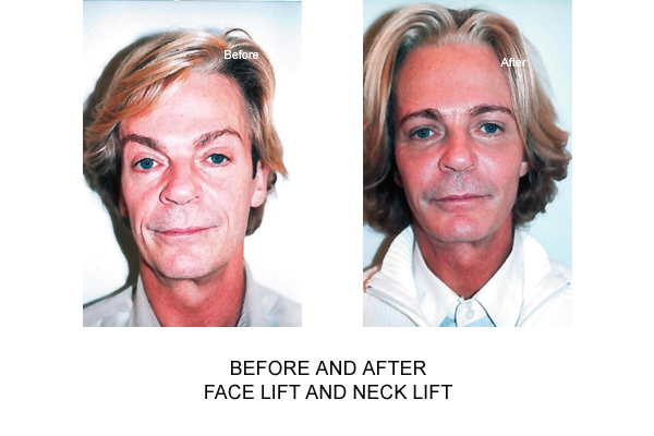 neck lift london surgery