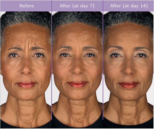 1 Female Before and After Botox Treatment