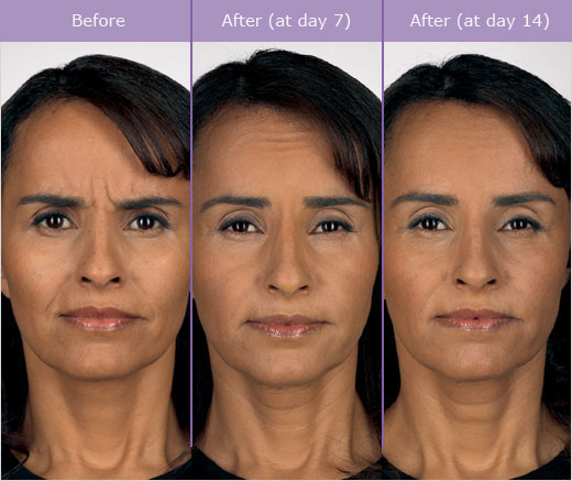 2 Female Before and After Botox Treatment