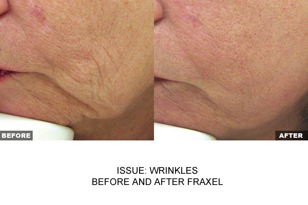 Fraxel On Cheeks To Reduce Lines