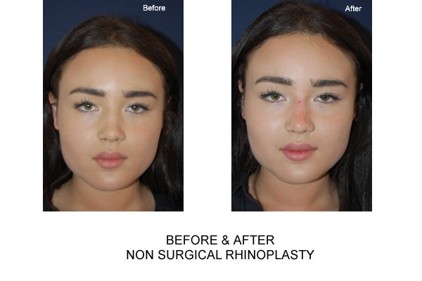Non Surgical Nose Job Fillers