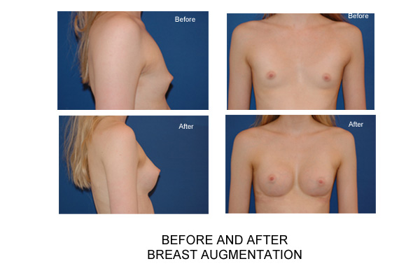 Augmentation breast breast implant information web that