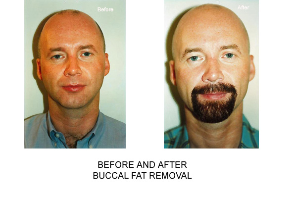 Before & After Buccal Fat Removal