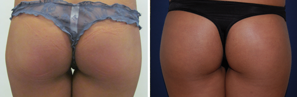 Before & After Buttock Augmentation Photos