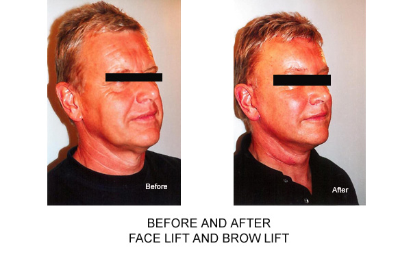 Before & After Facelift Browlift Fig 1