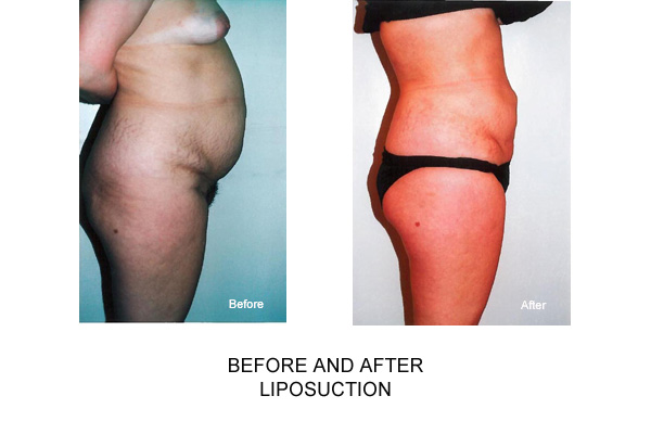 Before & After Female Tummy Liposuction