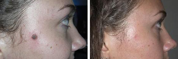 Before & After Mole Removal Photos