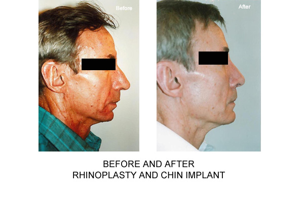 Before & After Rhinopalsty Fig 1