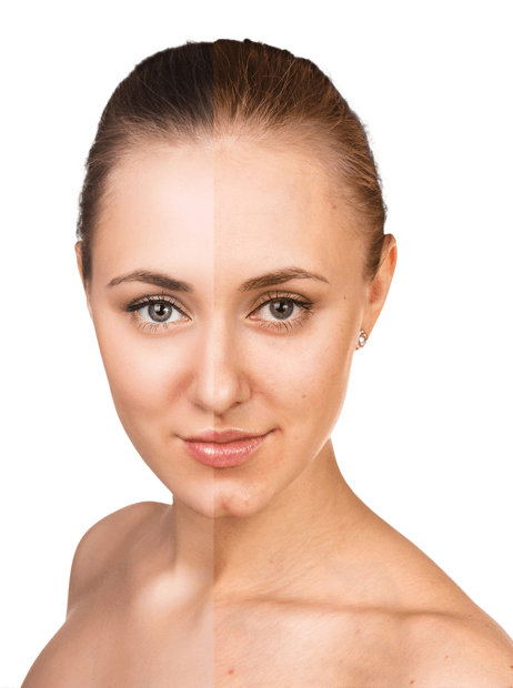 Isolaz Acne Treatment In London